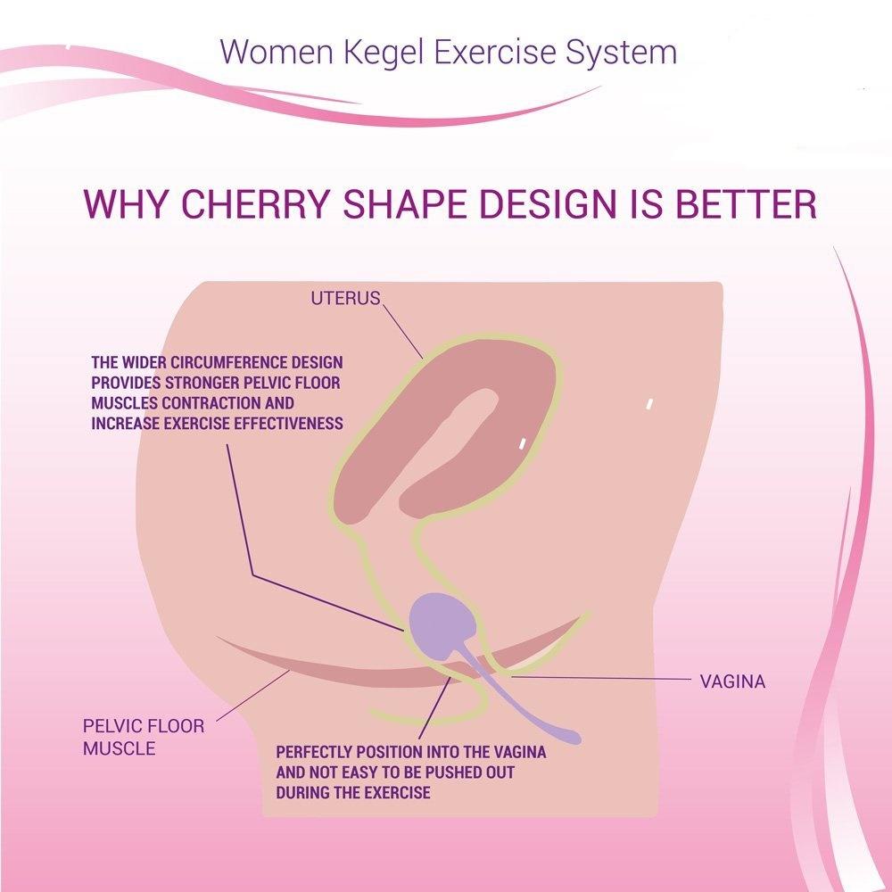 cherry: complete kegelset voor trainen bekkenbodemspieren